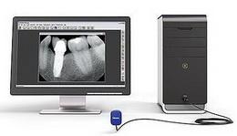 viziografie Gendex GXS-700 senzor è.2